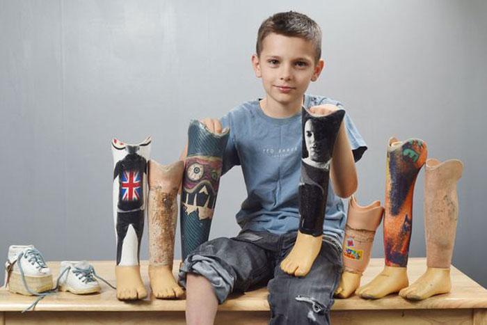 پروتز زیر زانو کودکان چگونه ساخته می شود؟
