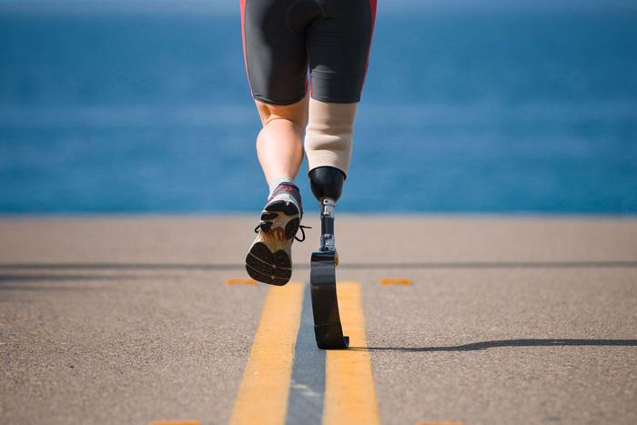 دویدن با پروتز پنجه کربنی امکان پذیر است؟